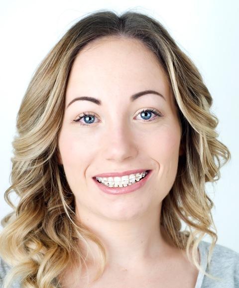 Beautiful Smile O'Keeffe Orthodontics