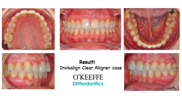 Invisalign Case O'Keeffe Orthodontics