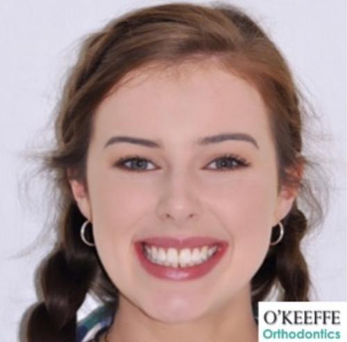 Megan O'Keeffe Orthodontics