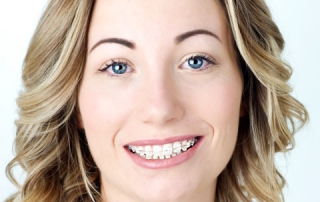 Beautiful Smile O'Keeffe Orthodontics