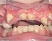 Frontal Intraoral Photo, O'Keeffe Orthodontics